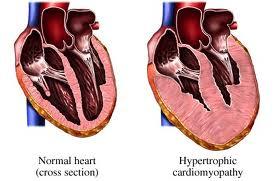 steroid congestive heart failure