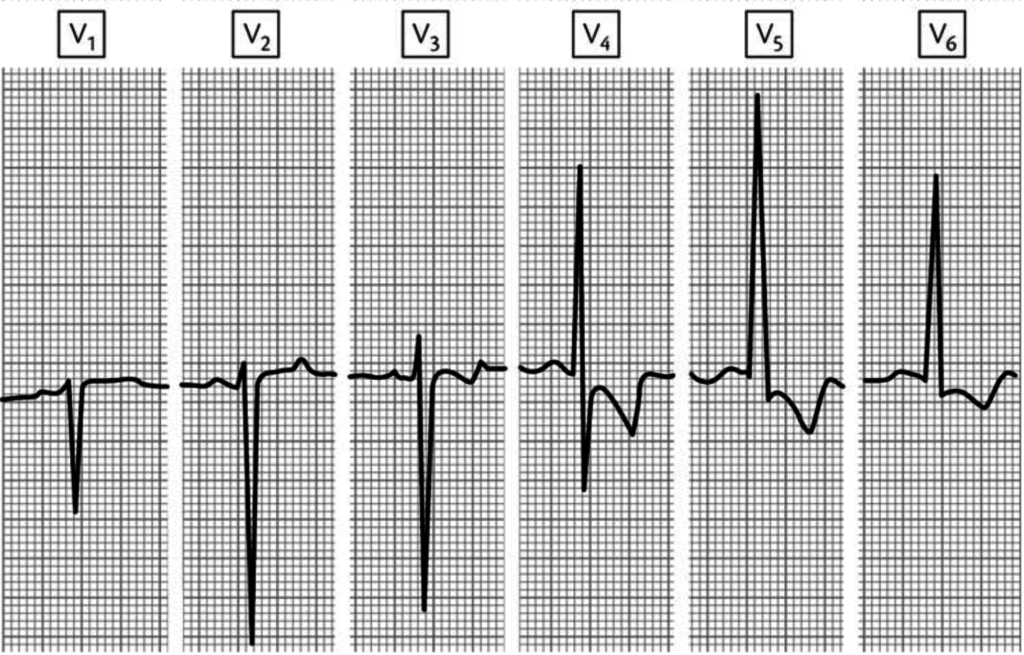 abnormal q waves causes