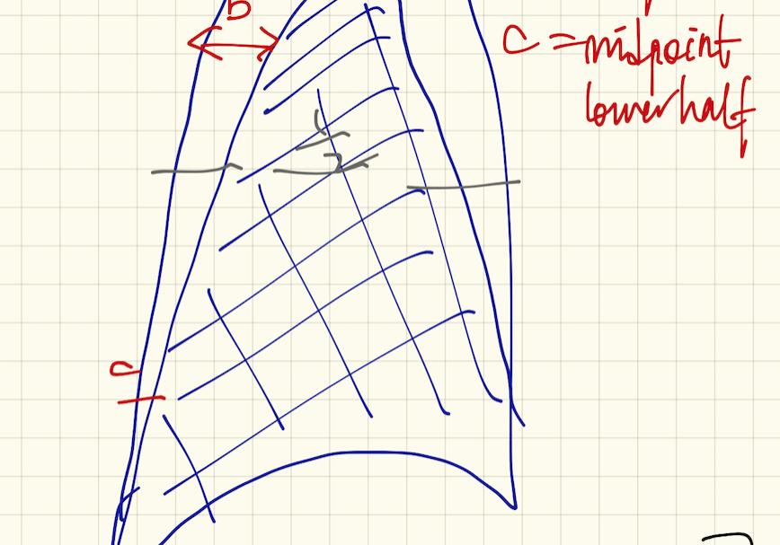 How Big is that Pneumothorax?