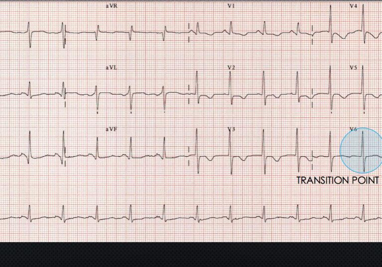img-pulmonary-embolism4