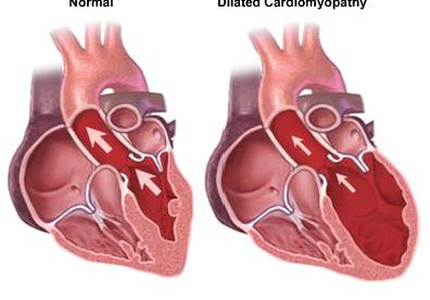 left-ventricular